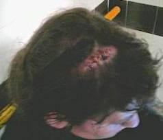 Noia agredida la setmana passada amb cop de porra per la policia a València, amb diversos punts al cap.